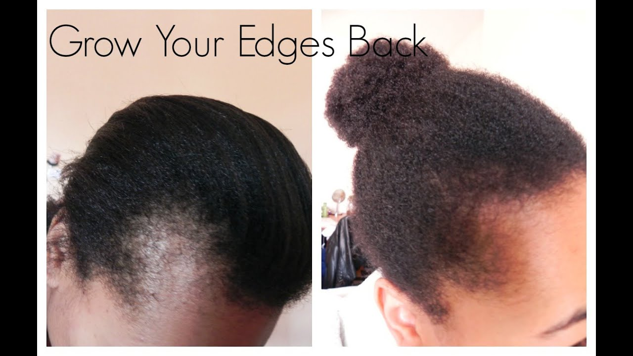 How to regrow hairline. hair growth tutorial regrow edges - how to regrow hair in your frontal hairline naturally