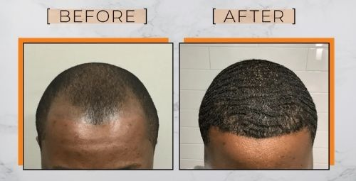 Black men hair transplant before and after. FUE procedure 360 waves