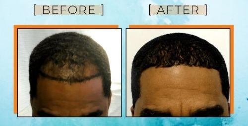 black men hair transplant fue before after
