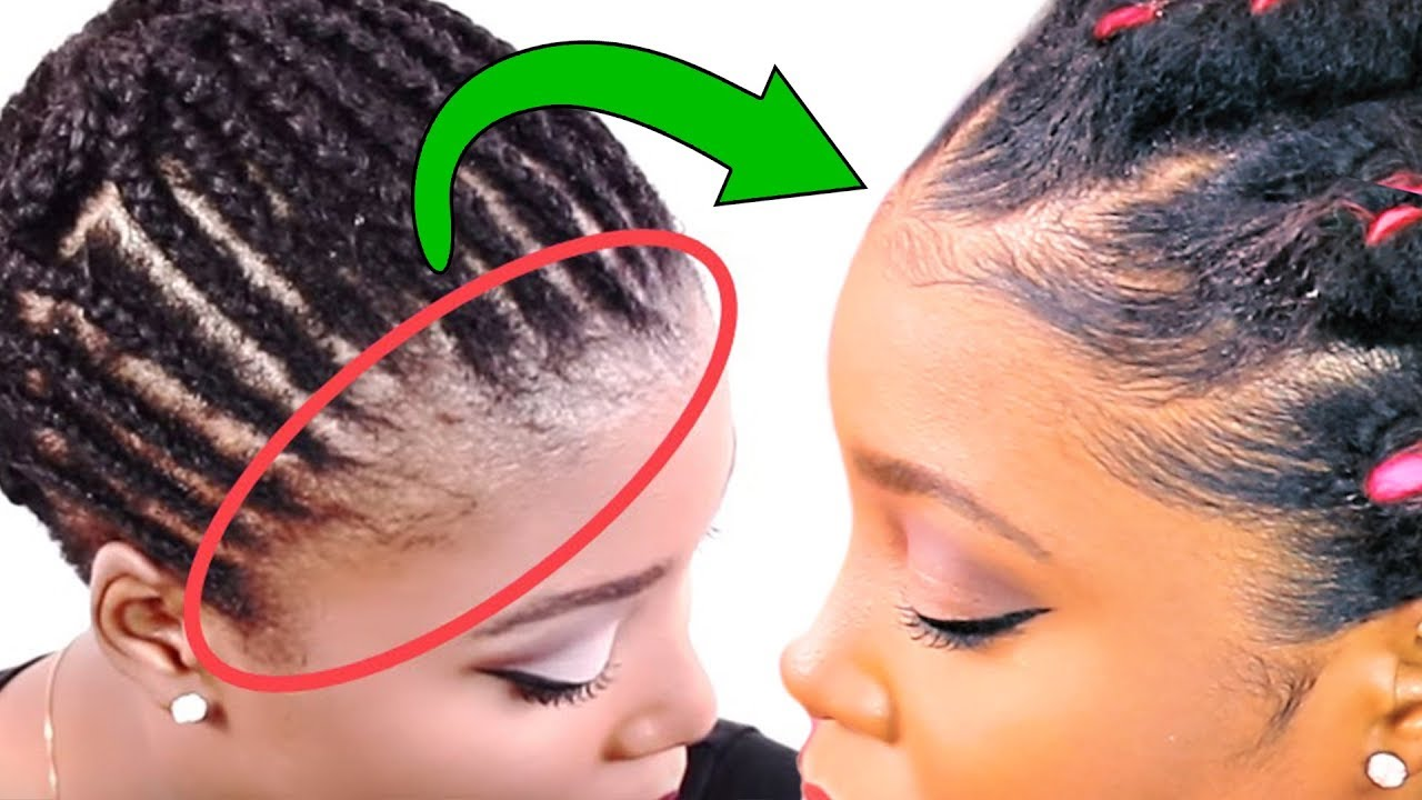 how-to-regrow-hairline-loss-edges