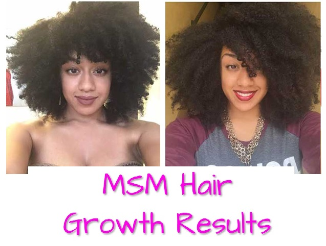 Fabulous Msm Hair Growth Before And After Pictures Schematic Wiring Diagrams Phreekkolirunnerswayorg