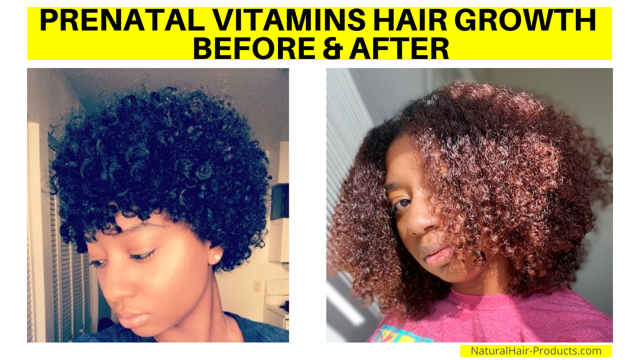 Prenatal Vitamins Hair Growth Before and After Pictures. Results after 1 year.