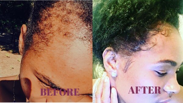 how to regrow hair in your frontal hairline naturally - how to grow hair fast