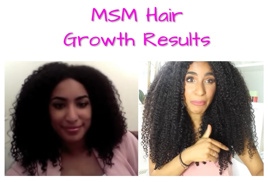 msm-hair-growth-before-and-after-pictures