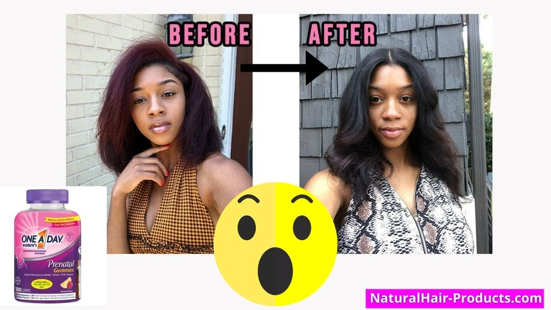 prenatal vitamins hair growth before and after pictures - taking one-a-day vitamin pills to grow hair faster